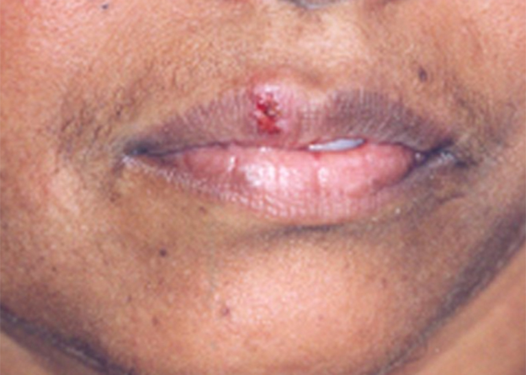 Herpes: What STD is it, and which symptoms do you look for